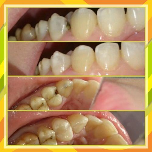 лечение кариеса 24 и 23 зубов